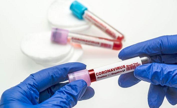 Korona virüsü salgını: Türkiye'de 5 bin 288 yeni vaka tespit edildi