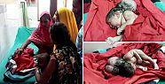 Hindistan'da üç başlı bebek doğdu