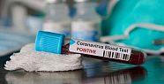 Koronavirüs'te bugün ne oldu? Vaka sayısı...
