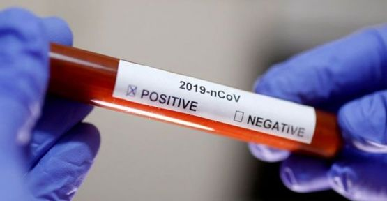 Virüsü 'en iyi tanıyan' kişi KHK ile ihraç edilmiş