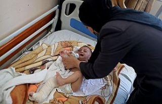 Dünya Gazze'de enkazdan kurtulan beş aylık...